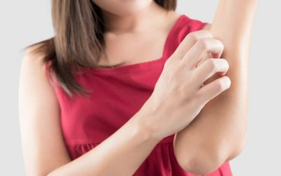 Kenali Perbedaan Alergi Susu dan Intoleransi Laktosa